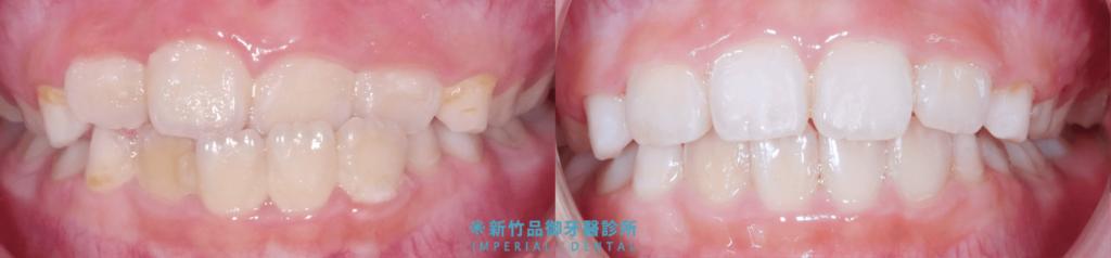兒童亂牙矯正前後比較圖
