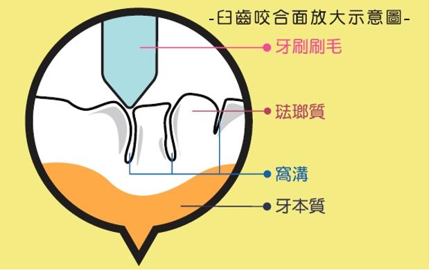牙刷毛在臼齒窩溝的放大圖