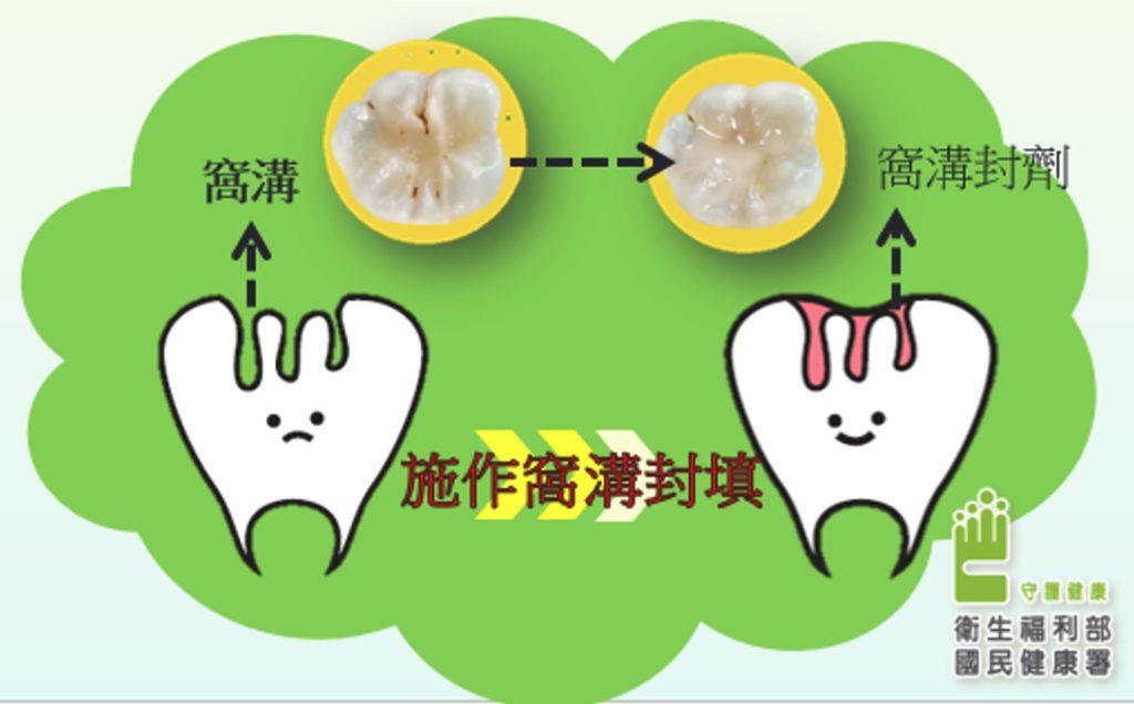 溝隙封填施作前後兩顆牙齒對比圖片