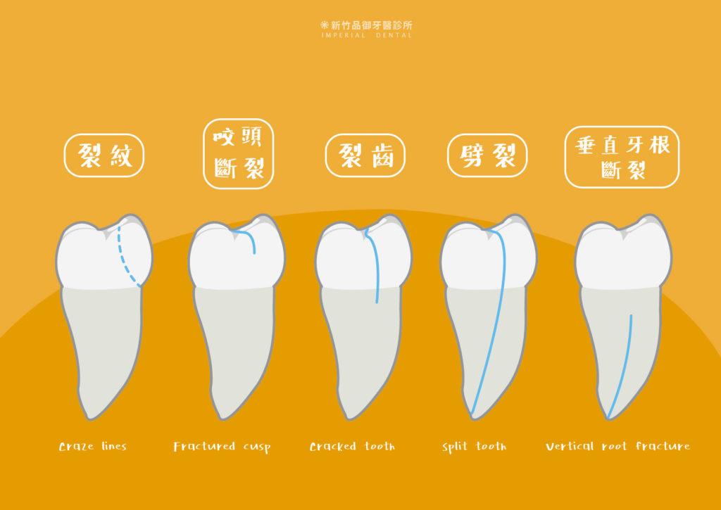 牙齒裂開五種型態