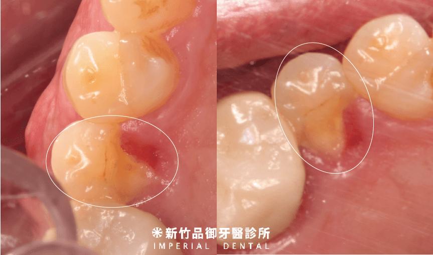 裂齒缺了一角的兩個不同角度圖片