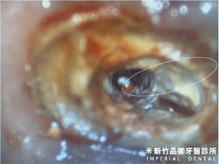 牙裂延伸至牙齒根管內