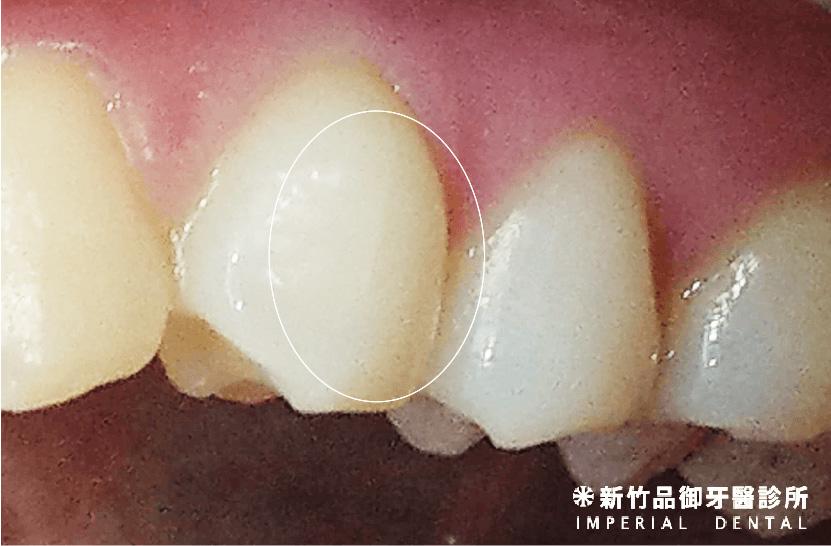 牙齒上有小裂紋