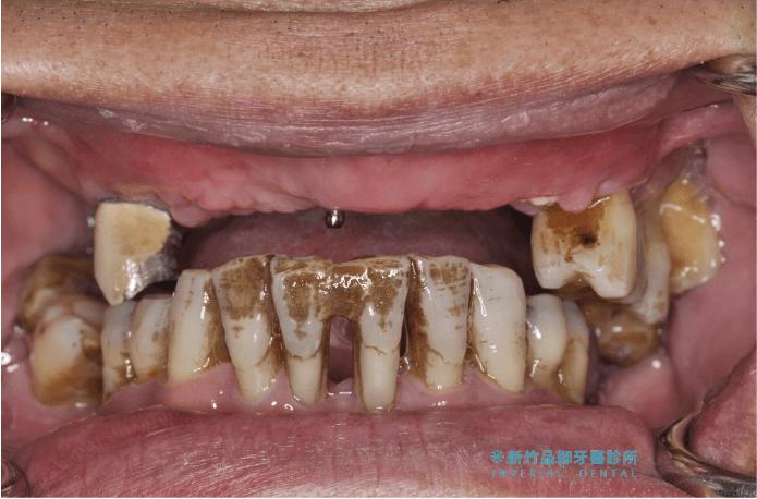嚴重牙周病上顎幾乎無牙