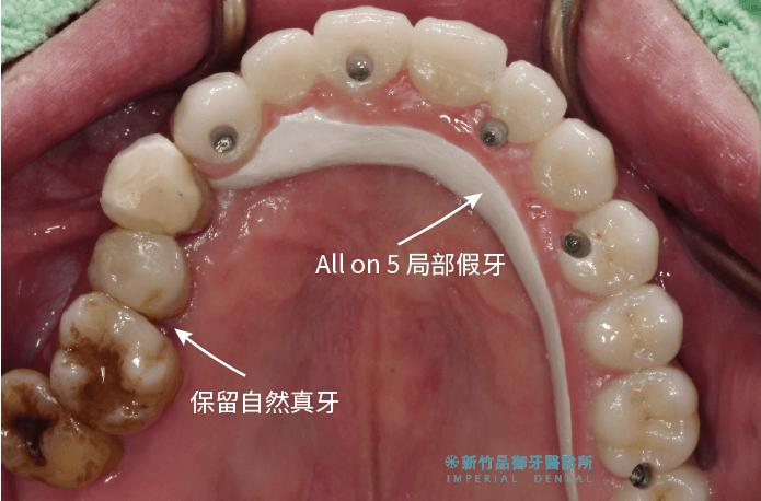 上顎保留部分真牙以及做all-on-5