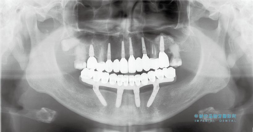 嚴重蛀牙的all-on-5術後X光