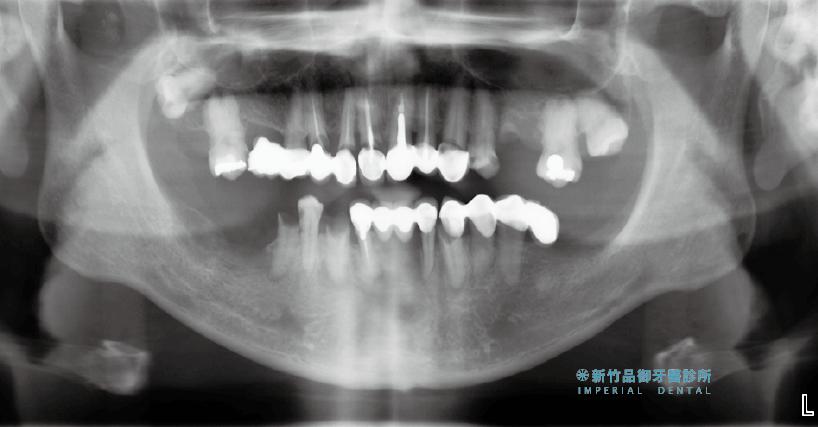 嚴重蛀牙的all-on-5術前X光