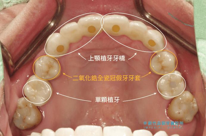 上顎牙橋加上單顆植牙