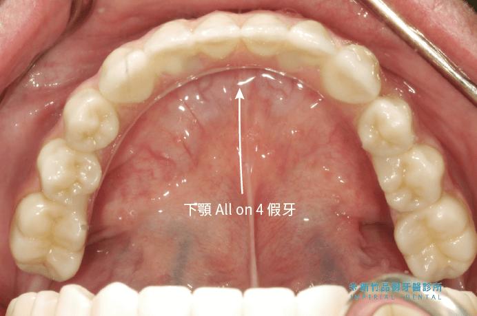 下顎all-on-4植牙