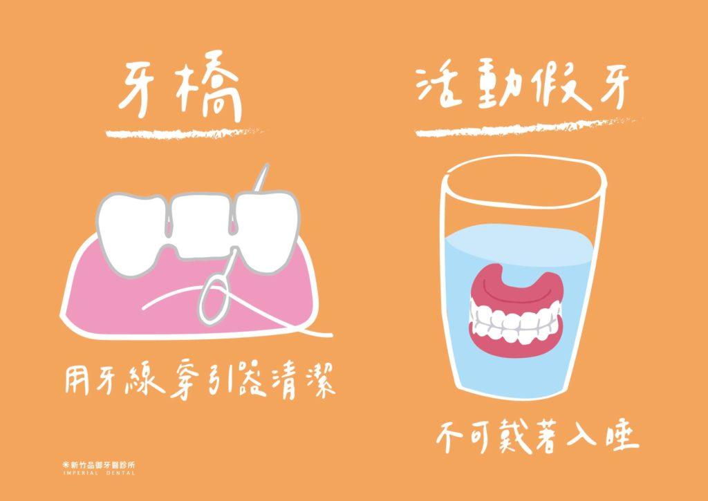 牙橋要用牙線穿引器清潔