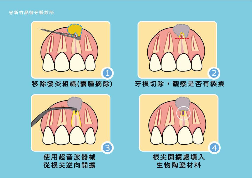 顯微根尖手術的步驟