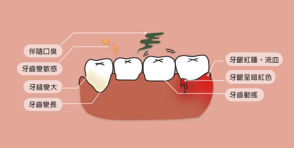 牙周病會出現哪些症狀?