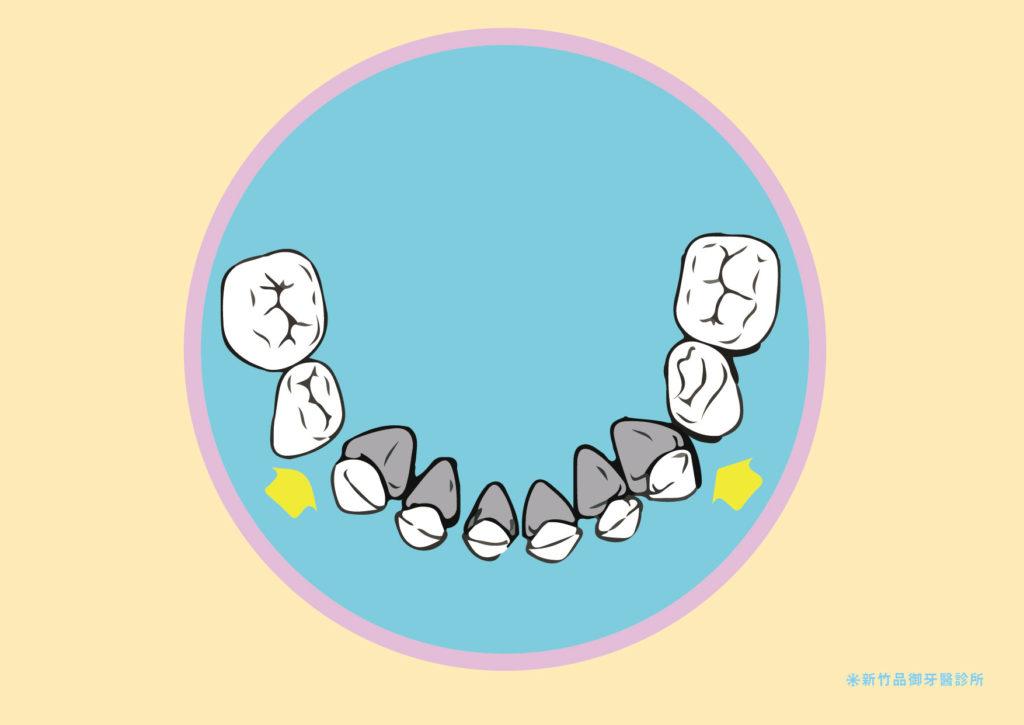 下排的恆牙牙胚,位在乳牙牙根處的偏內側。