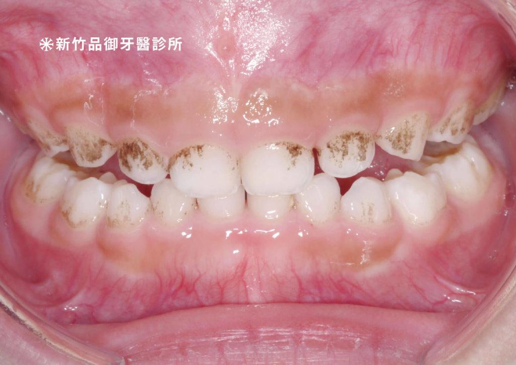 牙齒內外側靠近牙肉的地方黑黑的。