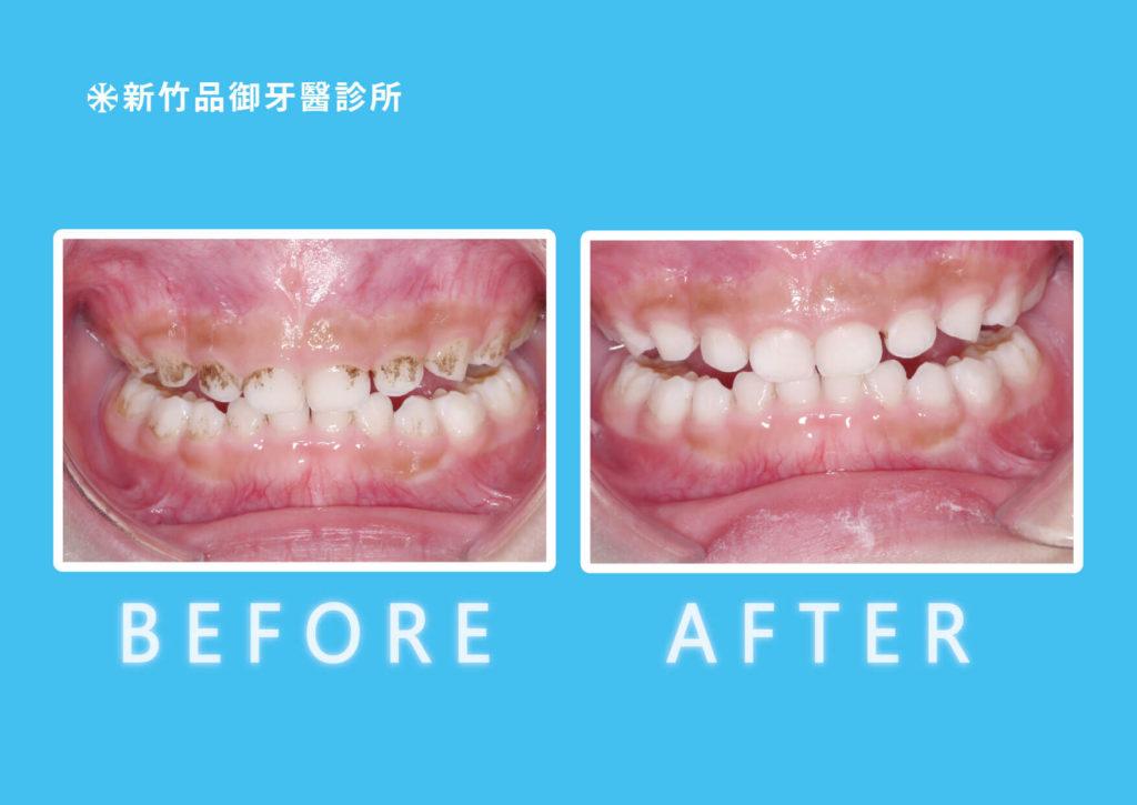 孩子牙齒黑黑的,術前術後照。