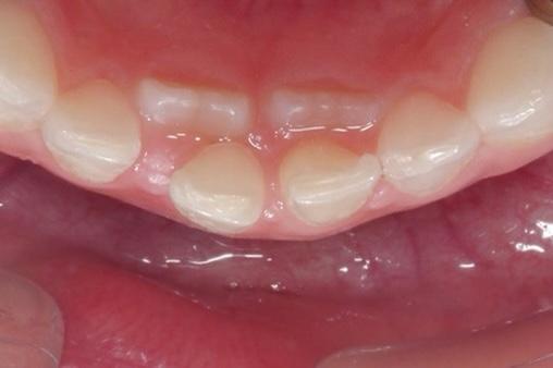 雙排牙案例照