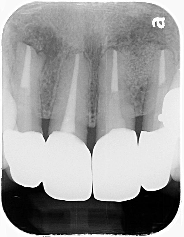 根管治療過後,套上牙套保護牙齒
