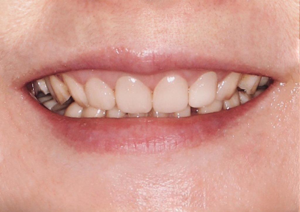 裝戴上正式假牙的案例照