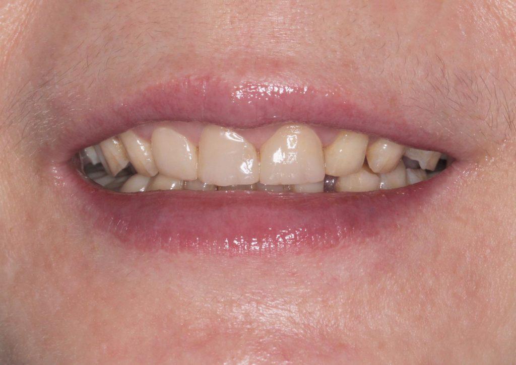裝戴上臨時假牙的案例照