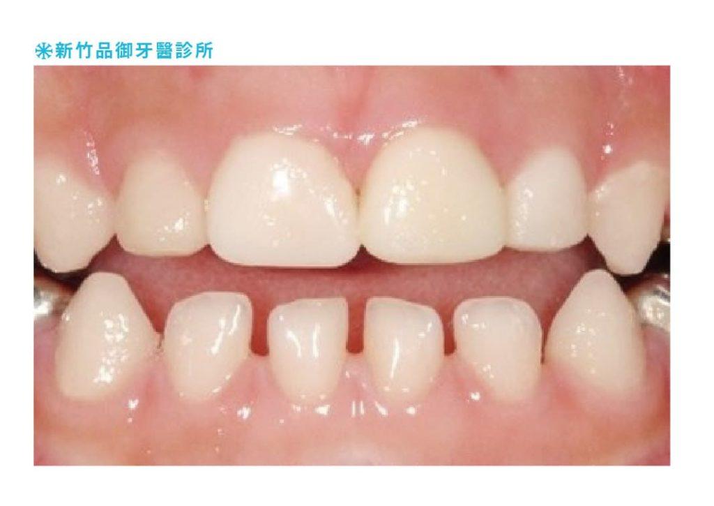 兒童乳牙裝瓷牙牙套的牙齒正面照片
