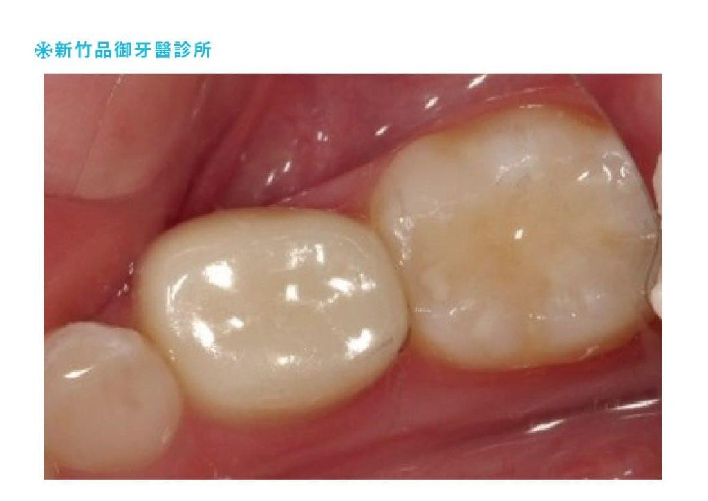 兒童乳牙後牙全瓷牙套