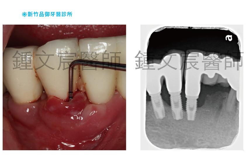 植牙後牙齦萎縮X光片